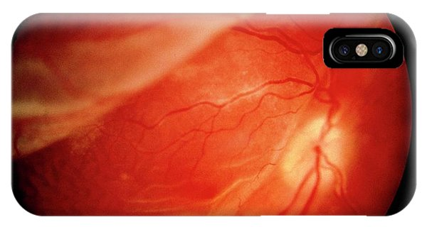 Ophthalmoscopy Of Detached Retina In Aids Patient Phone Case by Sue Ford/science Photo Library