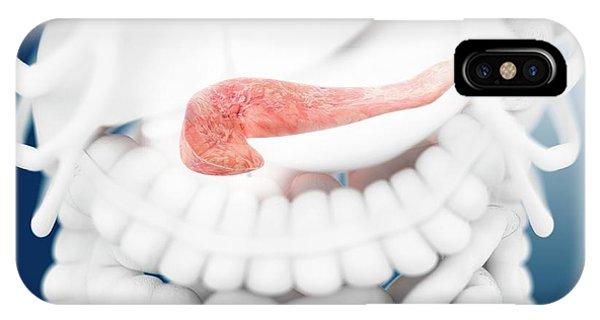 Pancreas Phone Case by Springer Medizin