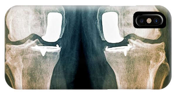 Partial Knee Replacement IPhone Case