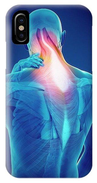 Person With Neck Pain Phone Case by Sebastian Kaulitzki/science Photo Library