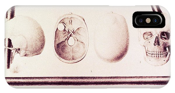 Neurology iPhone Case - Phineas Gage's Head Injury by Us National Library Of Medicine/science Photo Library