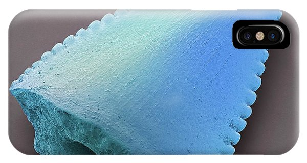 Crocodile iPhone Case - Phytosaur Tooth Fossil by Steve Gschmeissner/science Photo Library