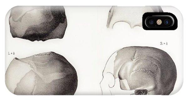 Piltdown Man Skull IPhone Case