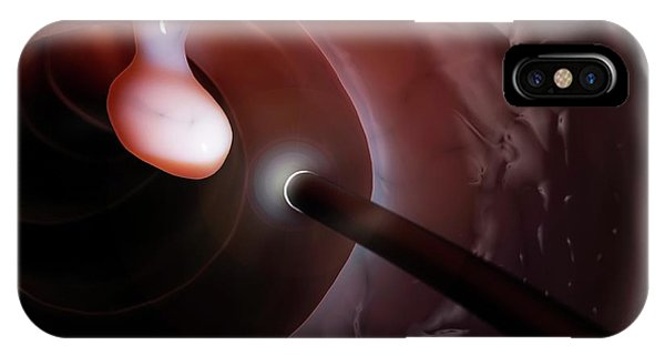 Polyp Found During A Colonoscopy IPhone Case