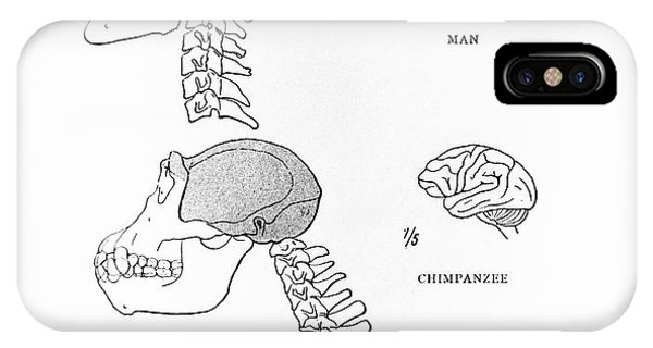 Primate Brains Phone Case by Science Photo Library
