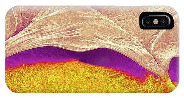 Tissue iPhone Case - Pulmonary Valve by Susumu Nishinaga