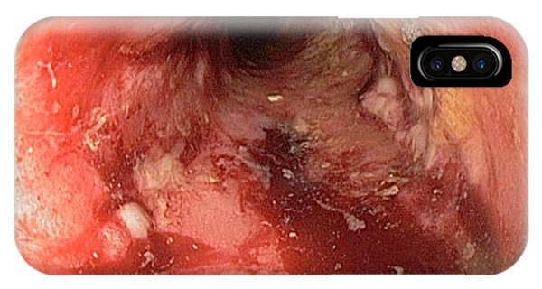Rectal Stricture In Crohn's Disease IPhone Case