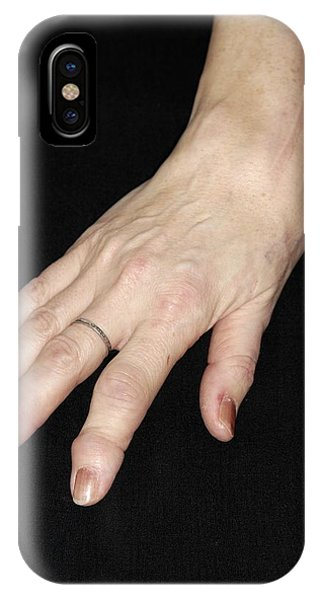 Chronic Pain iPhone Case - Rheumatoid Arthritis by Dr P. Marazzi/science Photo Library