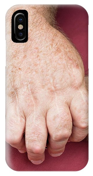 Chronic Pain iPhone Case - Rheumatoid Arthritis by Matt Meadows/science Photo Library