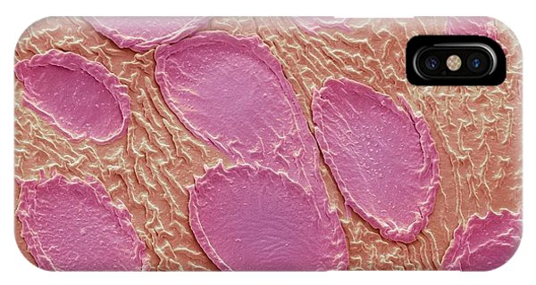 Scent iPhone Case - Rose Petal Scent Cells by Steve Gschmeissner