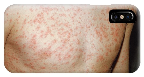 Rubella Rash Phone Case by Pr. Ph. Franceschini/cnri/science Photo Library