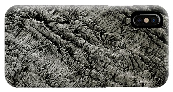 Toilet iPhone Case - Sem Of Toilet Paper Fibres by R.e. Litchfield/science Photo Library