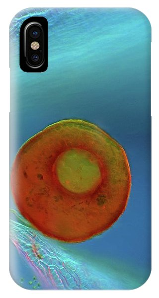 Unicellular iPhone Case - Shelled Amoeba And Sphagnum Moss by Marek Mis