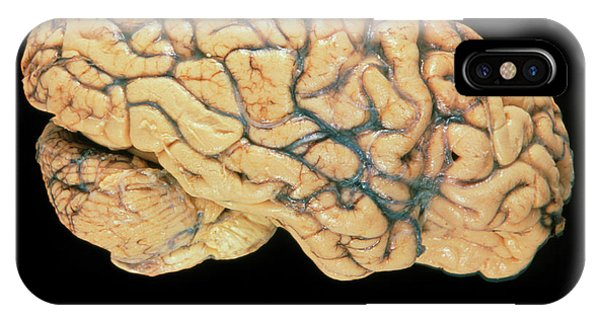 Brainstem iPhone Case - Side View Of A Healthy Human Brain by Garry Watson/science Photo Library