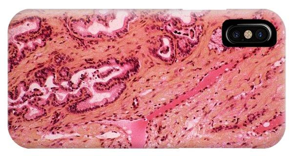Tissue iPhone Case - Stomach Metaplasia by Cnri