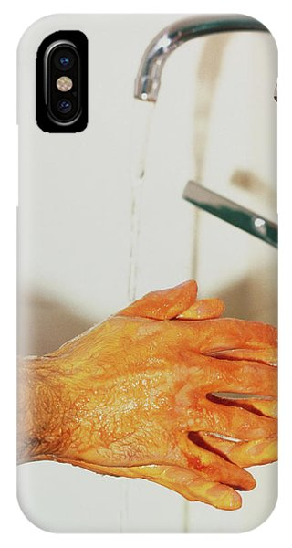 Surgeon Scrubbing Up Phone Case by Andrew Mcclenaghan/science Photo Library
