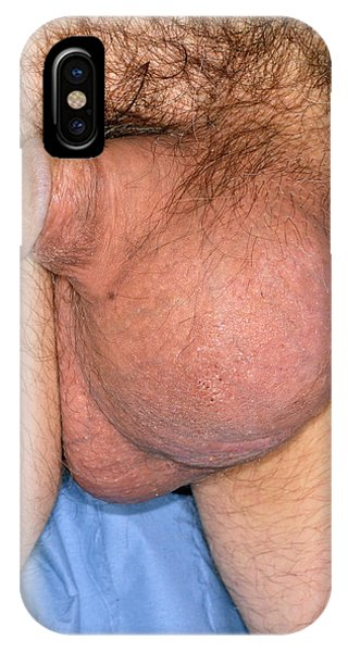 Swelling After Failed Hydrocoele Surgery Phone Case by Dr P. Marazzi/science Photo Library
