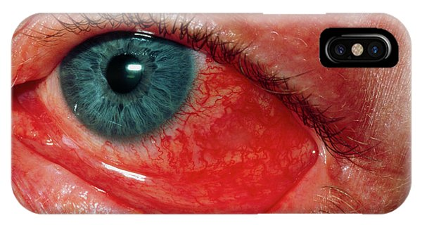Eye Ball iPhone Case - Tennis Ball Injury To Eye by Dr P. Marazzi/science Photo Library