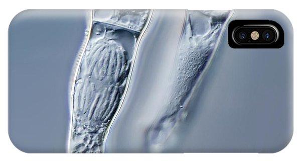 Tradescantia iPhone Case - Tradescantia Stamen Hair Mitosis by Gerd Guenther