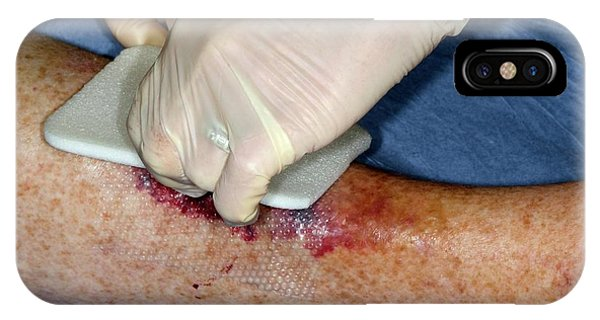 Dressing iPhone Case - Treated Laceration On The Shin by Dr P. Marazzi/science Photo Library