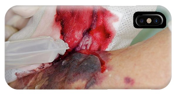 Dressing iPhone Case - Treating A Flap Laceration by Dr P. Marazzi/science Photo Library