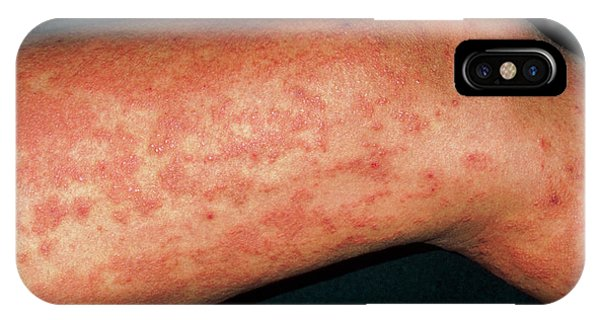 Urticaria Rash (hives) On Legs Due To Exam Stress by Dr P  Marazzi/science  Photo Library