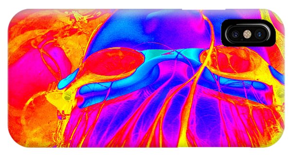 Wet Flames Of Hair IPhone Case