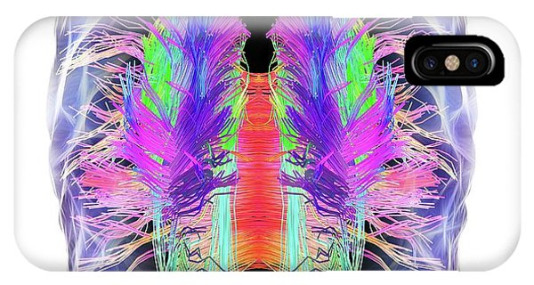 White Matter Fibres And Brain IPhone Case