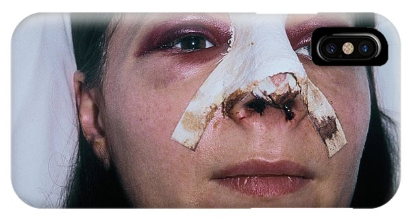 Dressing iPhone Case - Woman After Rhinoplasty by Alex Bartel/science Photo Library