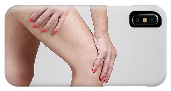 Chronic Pain iPhone Case - Woman Massages Her Painful Knee by Photostock-israel