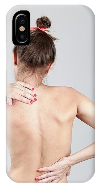 Chronic Pain iPhone Case - Woman With Back Pain by Photostock-israel