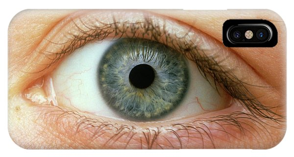 Woman's Right Eye Phone Case by Martin Dohrn/science Photo Library