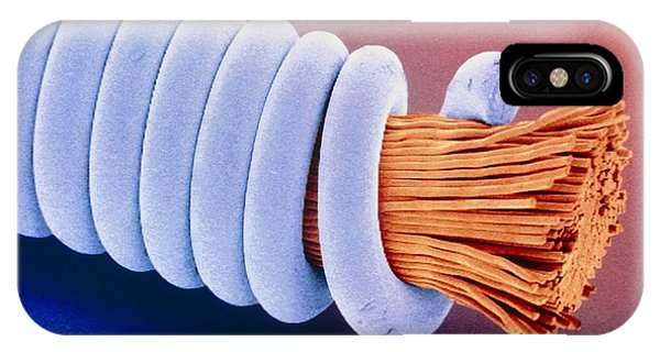 Coloured Sem Of 'superwound' Guitar String. Phone Case by Power And Syred