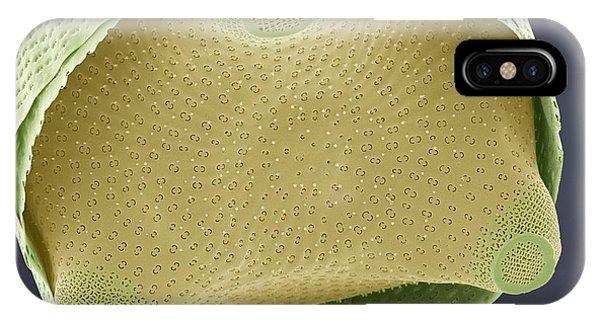 Diatom Shell, Sem Phone Case by Steve Gschmeissner