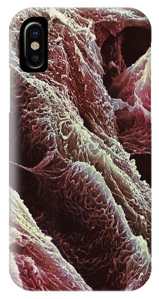 Foetus Compact Bone Phone Case by Steve Gschmeissner