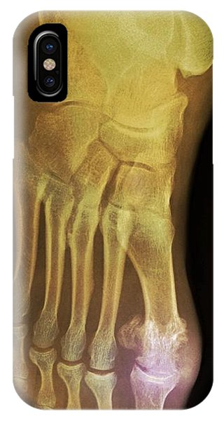 'gouty Foot, X-ray' Phone Case by Du Cane Medical Imaging Ltd