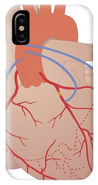 Heart, Artwork Phone Case by Peter Gardiner