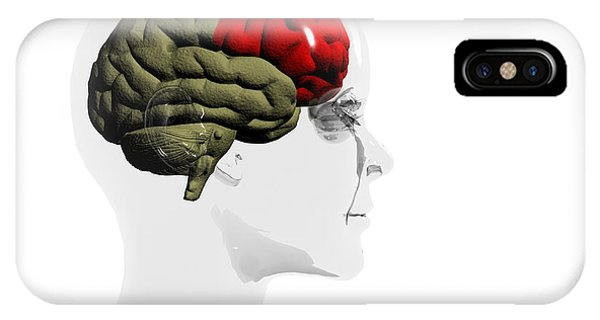 Human Brain, Frontal Lobe Phone Case by Christian Darkin