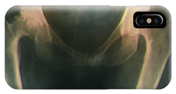 Osteoarthritis Of The Hip, X-ray Phone Case by Zephyr