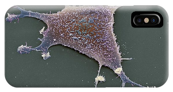 Sarcoma Cancer Cell Phone Case by Steve Gschmeissner