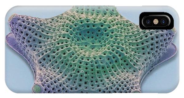 Diatom, Sem Phone Case by Steve Gschmeissner