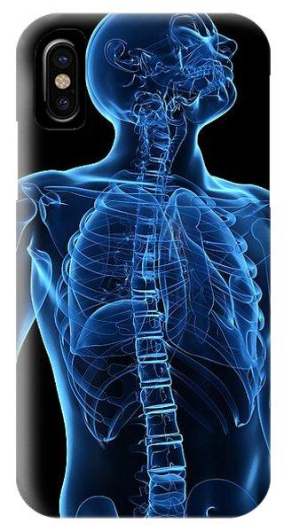 Upper Body Bones, Artwork Phone Case by Sciepro