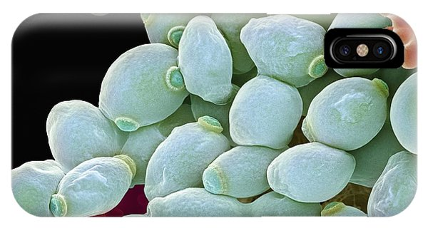 Candida Albicans Yeast Cells, Sem Phone Case by Steve Gschmeissner