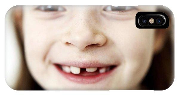 Loss Of Milk Teeth IPhone Case