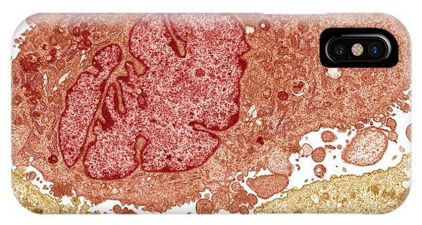 Lung Cancer Cell, Tem Phone Case by Steve Gschmeissner