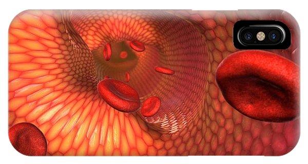 Narrowed Artery, Computer Artwork Phone Case by David Mack