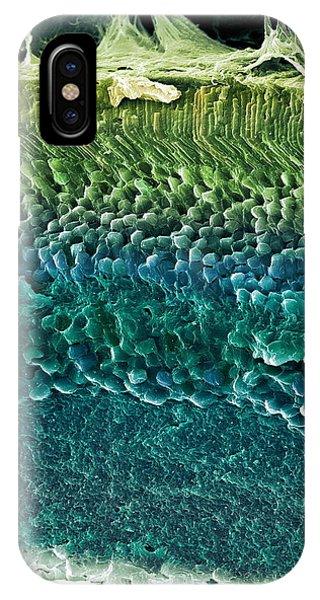 Retina, Sem Phone Case by Steve Gschmeissner