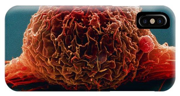 Bladder Cancer Cell, Sem Phone Case by Steve Gschmeissner