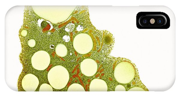 Fat Cells, Tem Phone Case by