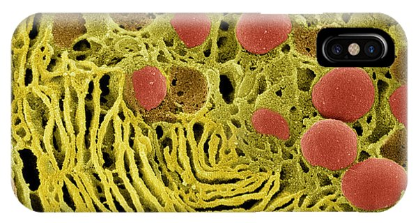 Pancreas Cell, Sem Phone Case by Steve Gschmeissner